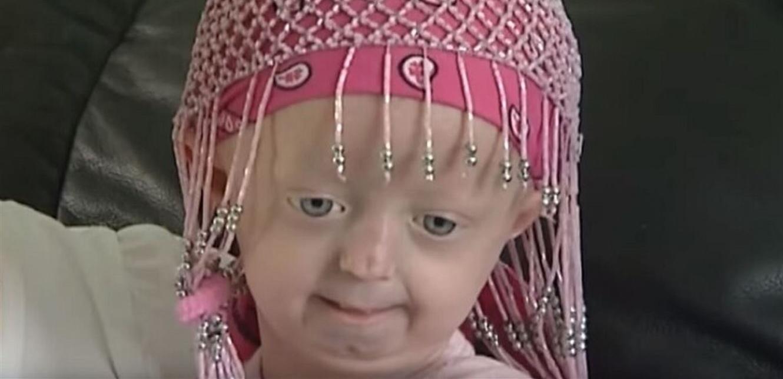 """ابنة الـ 8 سنوات تفارق الحياة.. بسبب """"الشيخوخة المبكرة""""!"""