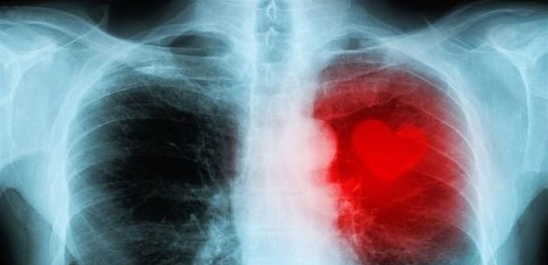 تقنية جديدة يمكنها التنبؤ بالنوبات القلبية في وقت مبكر